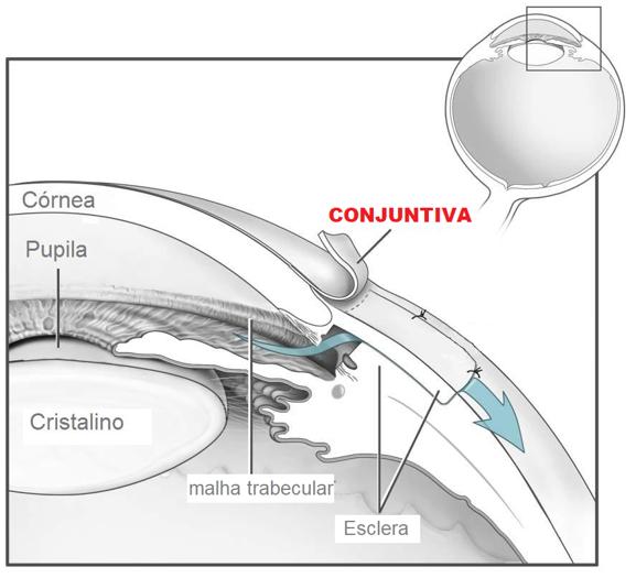 Esquema de um olho, com o detalhe indicando a conjuntiva, membrana que recobre parte da pálpebra e a esclera