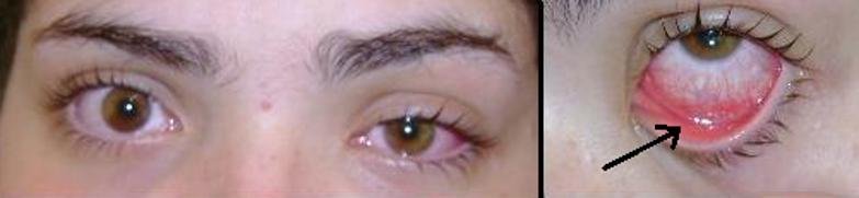 Imagem de uma pessoa com conjuntivite. Repare que um dos olhos está mais avermelhado e com as pálpebras inchadas do que no outro. Na imagem da direita, a seta indica a região da pálpebra que também é revestida pela membrana conjuntiva, que durante a inflamação, fica avermelhada