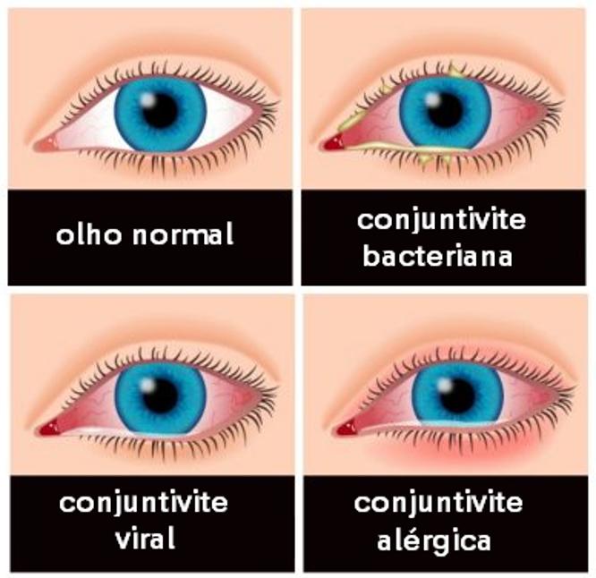 Esquema dos tipos de conjuntivite e como os sintomas aparecem nos olhos.