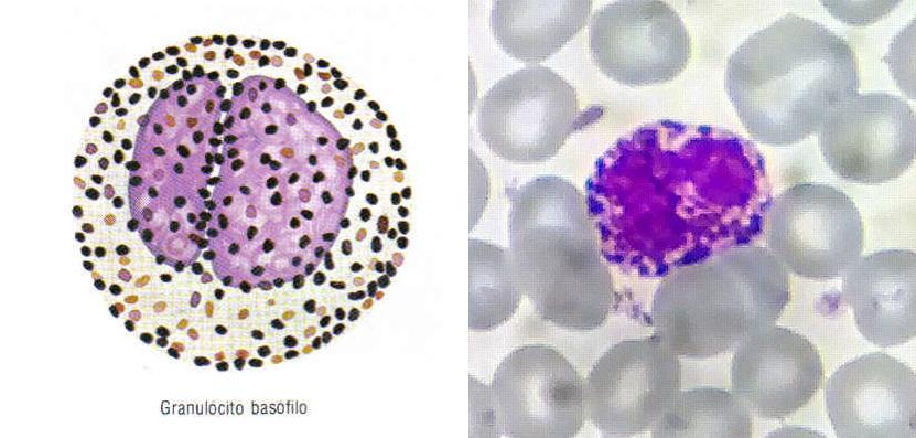 Esquema de um basófilo (esquerda), e como ele pode ser observado na microscopia óptica (direita). A coloração azul é pela presença de grânulos basófilos.